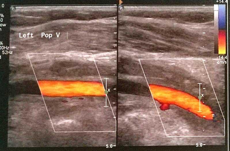 Υπερηχογράφημα triplex δείχνει θρόμβωση της αριστερής ιγνυακής φλέβας. Η γειτονική ιγνυακή αρτηρία αναγνωρίστηκε με φυσιολογική βατότητα (πορτοκαλί χρώμα) (εικόνα 2)