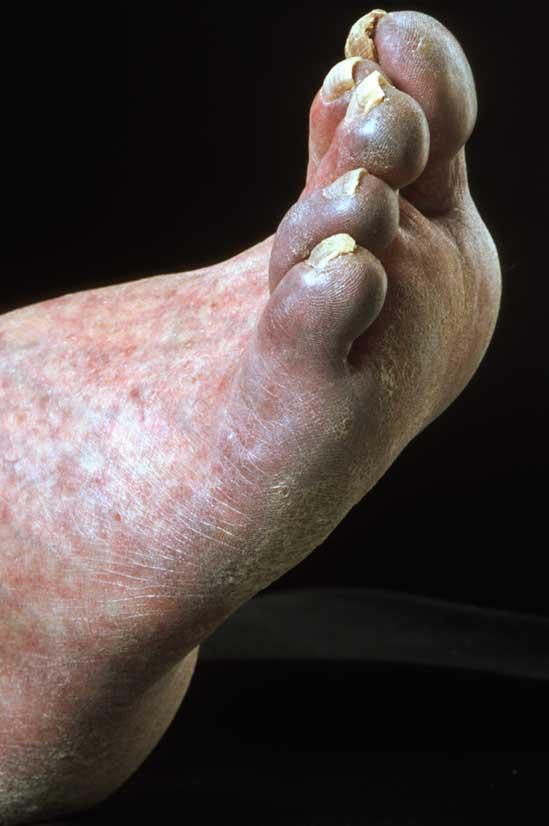 Ασθενής με ισχαιμία δακτύλων (trash foot) (εικόνα 1)