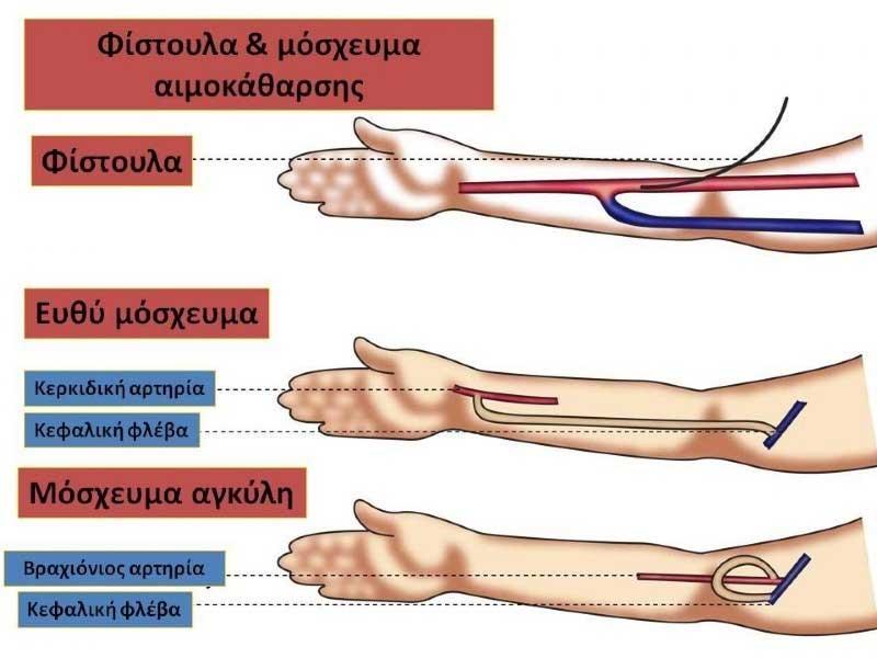 Φίστουλα και μόσχευμα αιμοκάθαρσης σε νεφροπαθείς (εικόνα 1)