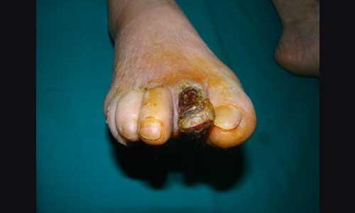 Ακρωτηριασμός δακτύλων για ξηρή ή υγρή γάγγραινα (εικόνα δ)