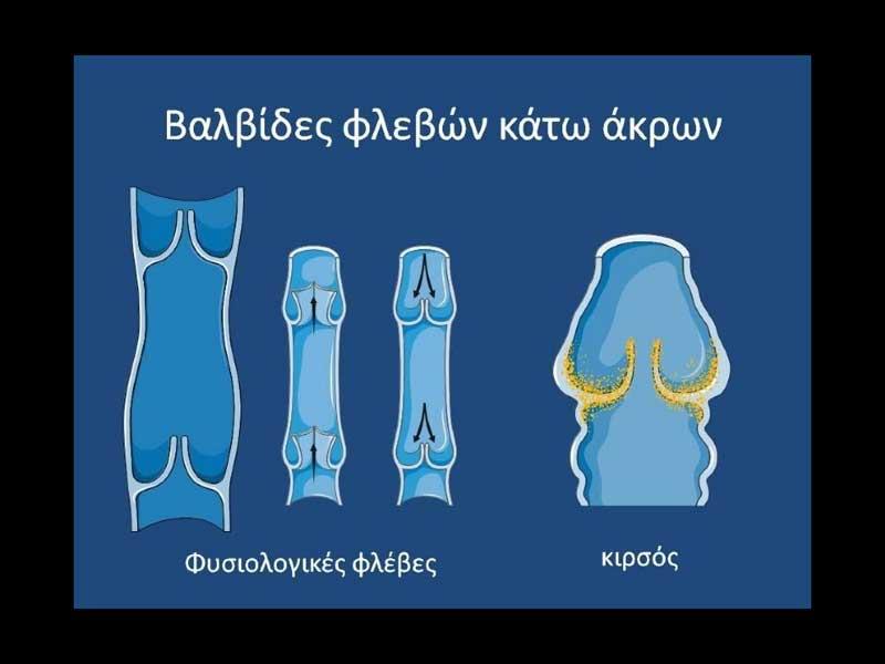 Φυσιολογικός βαλβιδικός μηχανισμός και ανεπάρκεια βαλβίδων των φλεβών των κάτω άκρων που οδηγεί σε φλεβική ανεπάρκεια και κιρσούς (Εικόνα 1α)