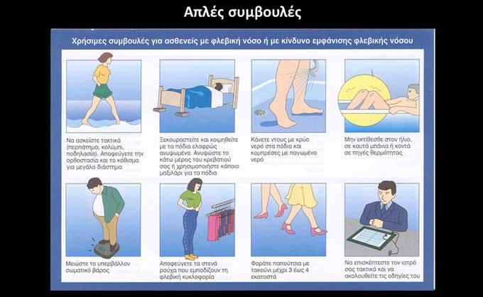 Απλές συμβουλές για ασθενείς με φλεβική ανεπάρκεια (εικόνα 4α)