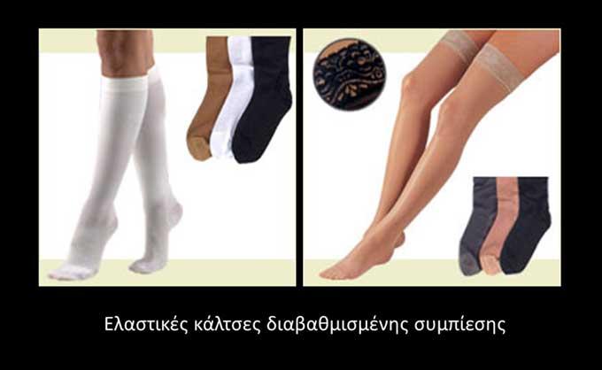 Ελαστικές κάλτσες διαβαθμισμένης συμπίεσης (εικόνα 4γ)