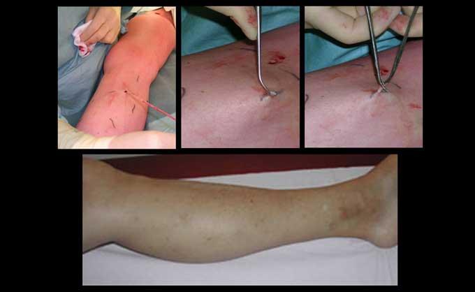 Η επέμβαση για κιρσούς μπορεί να γίνει χειρουργικά. Η επέμβαση είναι ελάχιστα τραυματική και γίνεται με μικροσκοπικές τομές, οι οποίες κλείνουν χωρίς ράμματα και με εξαιρετικό κοσμητικό αποτέλεσμα (εικόνα 5α)