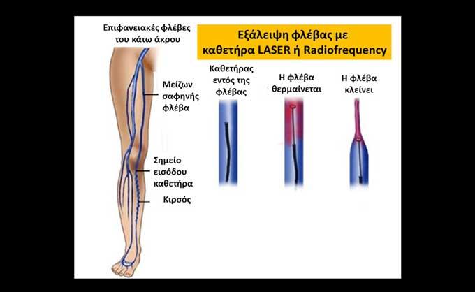 Η επέμβαση για κιρσούς μπορεί να γίνει με τη χρήση καθετήρων LASER ή radiofrequency (εικόνα 5β)