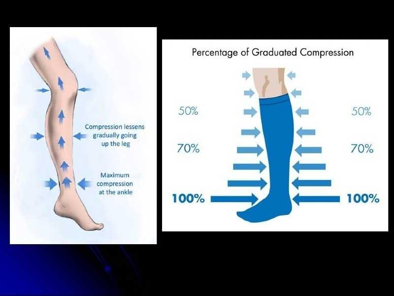 Οι ασθενείς με φλεβική ανεπάρκεια ή λεμφοίδημα αντιμετωπίζονται με ελαστικές κάλτσες διαβαθμισμένης συμπίεσης (εικόνα 1)