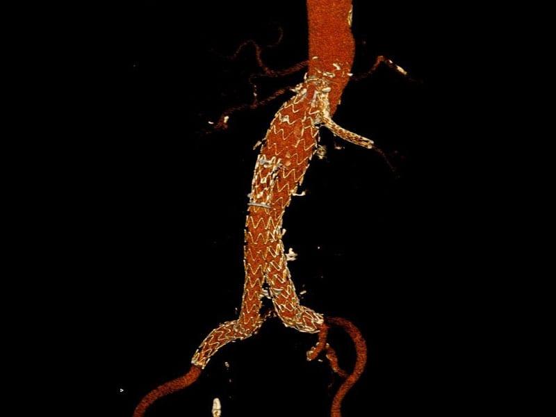 Αξονική στον ίδιο ασθενή ένα μήνα μετά από ενδοαυλική αποκατάσταση τύπου chimney. Δείτε την καπνοδόχο (chimney) στην αριστερή νεφρική αρτηρία. (εικόνα 4β)