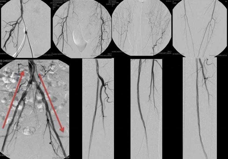 Ψηφιακή αγγειογραφία των αρτηριών των κάτω άκρων και αγγειοπλαστική (μπαλονάκι) με τοποθέτηση στεντ στον αριστερό μηρό (αριστερή επιπολής μηριαία αρτηρία) (εικόνα 3)