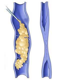 Σκληροθεραπεία είναι η έγχυση σκληρυντικού υγρού εντός του κιρσού. Αυτό προκαλεί φλεγμονή και καταστροφή του τοιχώματος της φλέβας με αποτέλεσμα ο αυλός της να κλείσει (εικόνα 1)