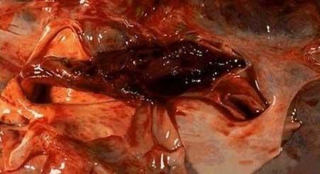 Θρόμβος που προκάλεσε την μαζική απόφραξη της πνευμονικής αρτηρίας (εικόνα 8)
