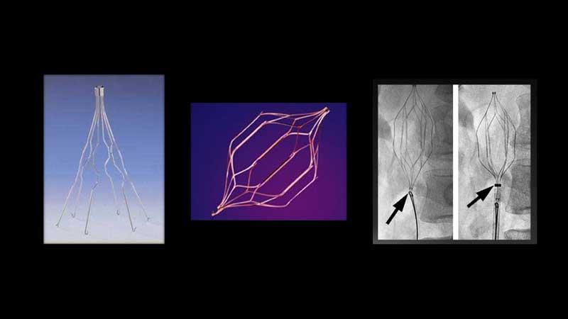 Φίλτρα κάτω κοίλης φλέβας, μόνιμα ή προσωρινά (εικόνα 9)