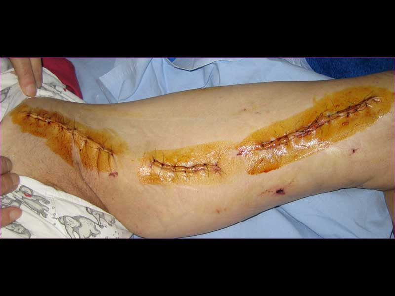 Ασθενής με διαλείπουσα χωλότητα (εικόνα 3β)