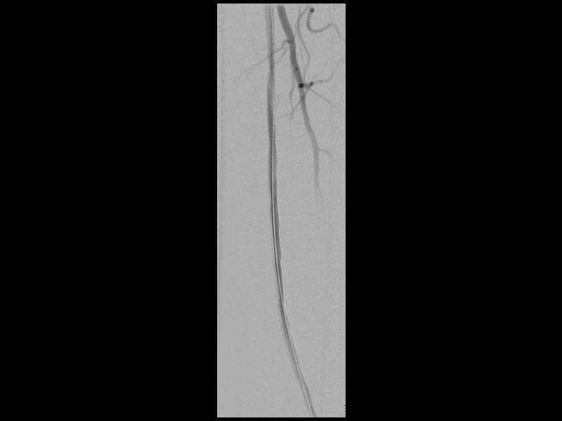 Ασθενής με διαλείπουσα χωλότητα (εικόνα 3θ)