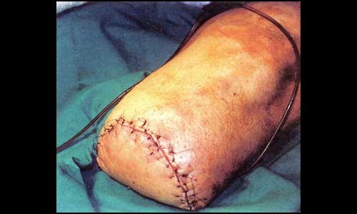Ακρωτηριασμός κάτω από το γόνατο (εικόνα ι)