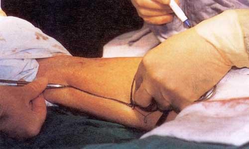 Ακρωτηριασμός κάτω από το γόνατο (εικόνα β)