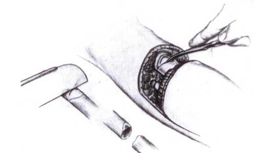 Ακρωτηριασμός κάτω από το γόνατο (εικόνα γ)