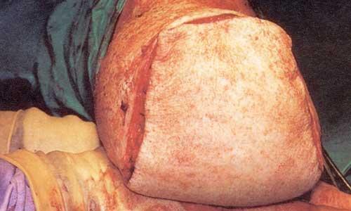 Ακρωτηριασμός κάτω από το γόνατο (εικόνα θ)