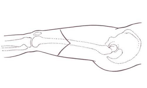 Ακρωτηριασμός πάνω από το γόνατο (εικόνα α)
