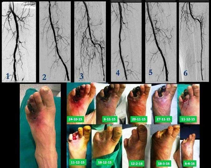 Διαβητική γάγγραινα δακτύλων του αριστερού ποδιού. Έγινε μπαλονάκι που βελτίωσε την κυκλοφορία στο πόδι και, σε δεύτερο χρόνο, ακολούθησε ακρωτηριασμός δακτύλων (εικόνα 4)