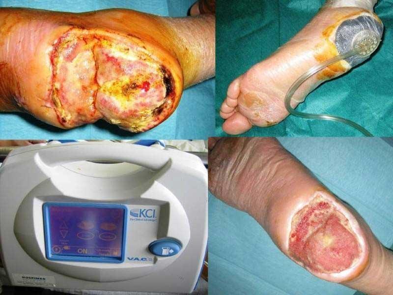 Θεραπεία ασθενή με διαβητική γάγγραινα πτέρνας χρησιμοποιώντας τη συσκευή VAC (εικόνα 1)