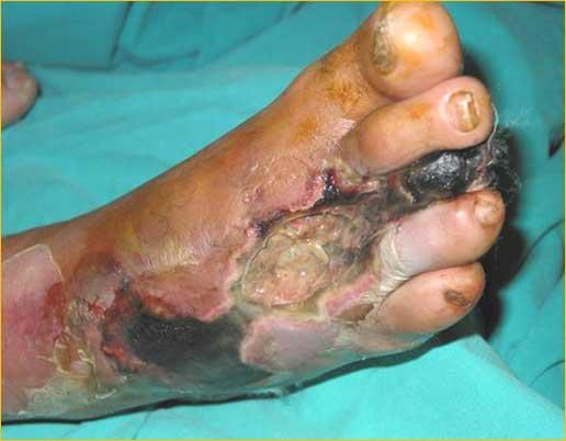 Ασθενής με κρίσιμη ισχαιμία (έλκη και υγρή γάγγραινα) (εικόνα 2)