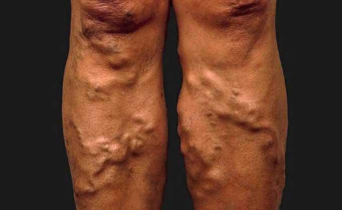 Κλινικά στάδια φλεβικής ανεπάρκειας: C3: κιρσοί με οίδημα (γ)