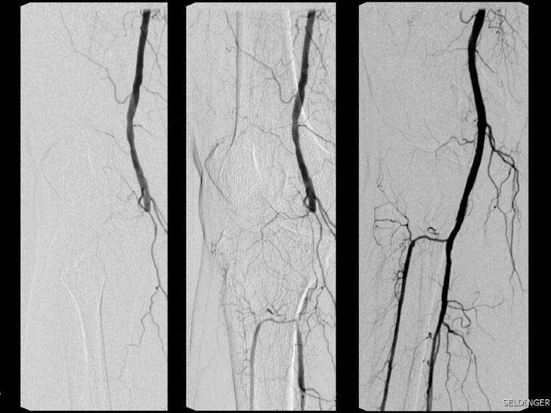 Μπαλονάκι σε ασθενή με διαβητική γάγγραινα λόγω απόφραξης της ιγνυακής αρτηρίας (εικόνα 3)